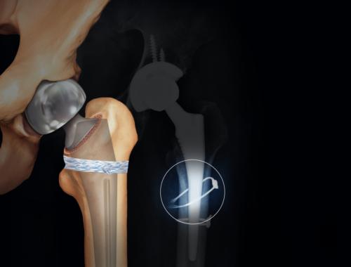 arthrex-medical-supplies-peerless-surgical